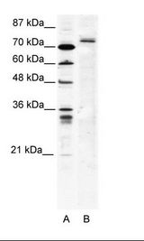SPRING / TRIM9 Antibody - A: Marker, B: HepG2 Cell Lysate.  This image was taken for the unconjugated form of this product. Other forms have not been tested.