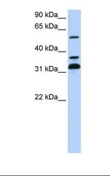 SPRING / TRIM9 Antibody - 721_B cell lysate. Antibody concentration: 1.0 ug/ml. Gel concentration: 12%.  This image was taken for the unconjugated form of this product. Other forms have not been tested.