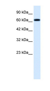 TRIM9 antibody Western blot of HepG2 cell lysate. This image was taken for the unconjugated form of this product. Other forms have not been tested.