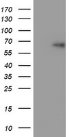 HEK293T cells were transfected with the pCMV6-ENTRY control (Left lane) or pCMV6-ENTRY TRIM9 (Right lane) cDNA for 48 hrs and lysed. Equivalent amounts of cell lysates (5 ug per lane) were separated by SDS-PAGE and immunoblotted with anti-TRIM9.