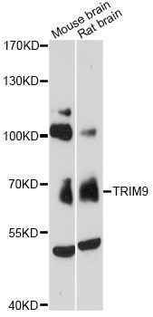 Western blot analysis of extracts of various cell lines, using TRIM9 antibody at 1:3000 dilution. The secondary antibody used was an HRP Goat Anti-Rabbit IgG (H+L) at 1:10000 dilution. Lysates were loaded 25ug per lane and 3% nonfat dry milk in TBST was used for blocking. An ECL Kit was used for detection and the exposure time was 90s.