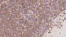 SPRING / TRIM9 Antibody - 1:100 staining human lymph carcinoma tissue by IHC-P. The sample was formaldehyde fixed and a heat mediated antigen retrieval step in citrate buffer was performed. The sample was then blocked and incubated with the antibody for 1.5 hours at 22°C. An HRP conjugated goat anti-rabbit antibody was used as the secondary.