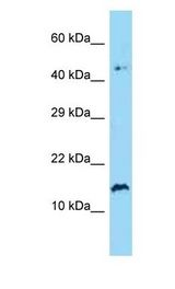 SPRR2A Antibody - SPRR2A antibody Western Blot of Human Jurkat. Antibody dilution: 1 ug/ml.  This image was taken for the unconjugated form of this product. Other forms have not been tested.