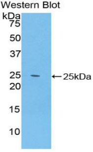 SPRY2 / Sprouty 2 Antibody - Western blot of recombinant SPRY2 / Sprouty 2.  This image was taken for the unconjugated form of this product. Other forms have not been tested.