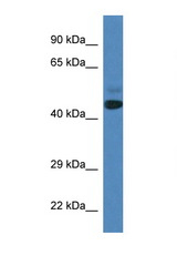 SPRYD3 Antibody - SPRYD3 antibody Western blot of Fetal Heart lysate. Antibody concentration 1 ug/ml.  This image was taken for the unconjugated form of this product. Other forms have not been tested.