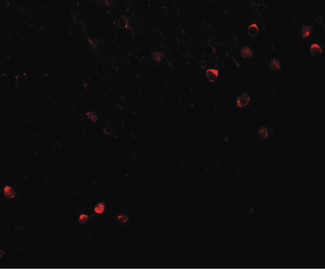 SPRYD3 Antibody - Immunofluorescence of SPRYD3 in mouse brain tissue with SPRYD3 antibody at 20 ug/ml.