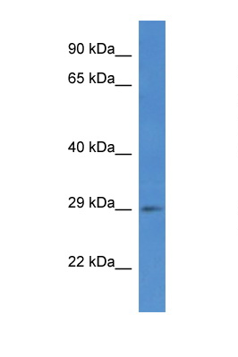 SPSB2 antibody LS-C135835 Western blot of COL0205 Cell lysate. Antibody concentration 1 ug/ml.  This image was taken for the unconjugated form of this product. Other forms have not been tested.