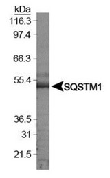 SQSTM1 Antibody - Western Blot: p62/SQSTM1 Antibody - Analysis of SQSTM1 in HeLa whole cell extracts.  This image was taken for the unconjugated form of this product. Other forms have not been tested.