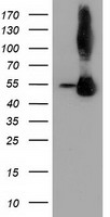 SQSTM1 Antibody - HEK293T cells were transfected with the pCMV6-ENTRY control (Left lane) or pCMV6-ENTRY SQSTM1 (Right lane) cDNA for 48 hrs and lysed. Equivalent amounts of cell lysates (5 ug per lane) were separated by SDS-PAGE and immunoblotted with anti-SQSTM1.