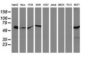SQSTM1 Antibody - Western blot of extracts (35 ug) from 9 different cell lines by using anti-SQSTM1 monoclonal antibody (HepG2: human; HeLa: human; SVT2: mouse; A549: human; COS7: monkey; Jurkat: human; MDCK: canine; PC12: rat; MCF7: human).