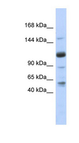 U2SURP / SR140 antibody Western blot of Fetal Heart lysate. This image was taken for the unconjugated form of this product. Other forms have not been tested.
