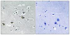 SREBF1 / SREBP-1 Antibody - Immunohistochemistry analysis of paraffin-embedded human brain tissue, using SREBP-1 Antibody. The picture on the right is blocked with the synthesized peptide.