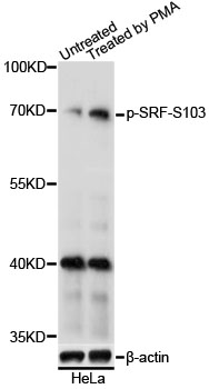 SRF / Serum Response Factor Antibody - Western blot analysis of extracts of HeLa cells, using Phospho-SRF-S103 antibody at 1:1000 dilution. HeLa cells were treated by PMA/TPA (200nM) for 15 minutes after serum-starvation overnight. The secondary antibody used was an HRP Goat Anti-Rabbit IgG (H+L) at 1:10000 dilution. Lysates were loaded 25ug per lane and 3% nonfat dry milk in TBST was used for blocking. Blocking buffer: 3% BSA.An ECL Kit was used for detection and the exposure time was 5s.