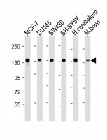 SRGAP2 Antibody - All lanes: Anti-SRGAP2 Antibody (C-term) at 1:2000 dilution. Lane 1: MCF-7 whole cell lysate. Lane 2: DU145 whole cell lysate. Lane 3: SW480 whole cell lysate. Lane 4: SH-SY5Y whole cell lysate. Lane 5: human cerebellum lysate. Lane 6: mouse brain lysate Lysates/proteins at 20 ug per lane. Secondary Goat Anti-Rabbit IgG, (H+L), Peroxidase conjugated at 1:10000 dilution. Predicted band size: 121 kDa. Blocking/Dilution buffer: 5% NFDM/TBST.