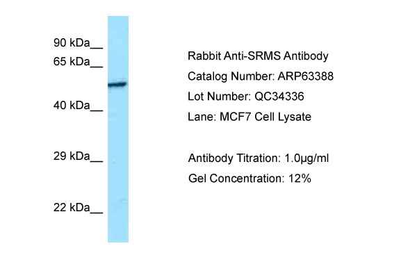 SRMS Antibody -  This image was taken for the unconjugated form of this product. Other forms have not been tested.