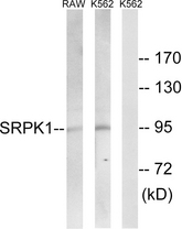 Western blot analysis of lysates from K562 and RAW264.7 cells, using SRPK1 Antibody. The lane on the right is blocked with the synthesized peptide.