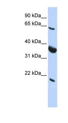 SRPR antibody LS-C101845 Western blot of HepG2 cell lysate.  This image was taken for the unconjugated form of this product. Other forms have not been tested.