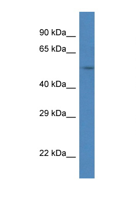 SRPX antibody LS-C145244 Western blot of Mouse Liver lysate. Antibody concentration 1 ug/ml.  This image was taken for the unconjugated form of this product. Other forms have not been tested.