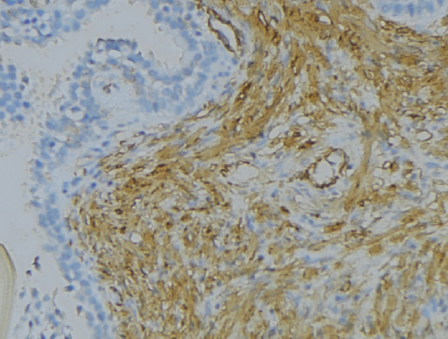 SRPX2 Antibody - 1:100 staining human uterus tissue by IHC-P. The sample was formaldehyde fixed and a heat mediated antigen retrieval step in citrate buffer was performed. The sample was then blocked and incubated with the antibody for 1.5 hours at 22°C. An HRP conjugated goat anti-rabbit antibody was used as the secondary.