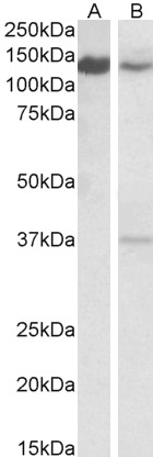 SRRT / ARS2 antibody (0.1µg/ml) staining of Daudi (A) and Mouse Spleen (B) lysates (35µg protein in RIPA buffer). Detected by chemiluminescence.
