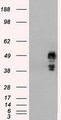 HEK293T cells were transfected with the pCMV6-ENTRY control (Left lane) or pCMV6-ENTRY SSB (Right lane) cDNA for 48 hrs and lysed. Equivalent amounts of cell lysates (5 ug per lane) were separated by SDS-PAGE and immunoblotted with anti-SSB.