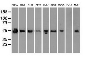 Western blot of extracts (35 ug) from 9 different cell lines by using anti-anti-SSB monoclonal antibody.