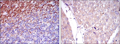 IHC of paraffin-embedded human cerebellum tissues (left) and human liver cancer tissues (right) using CD15 mouse monoclonal antibody with DAB staining.