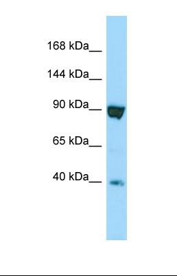 Western blot of Human HT1080. SSFA2 antibody dilution 1.0 ug/ml.  This image was taken for the unconjugated form of this product. Other forms have not been tested.