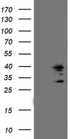 SSR1 Antibody - HEK293T cells were transfected with the pCMV6-ENTRY control (Left lane) or pCMV6-ENTRY SSR1 (Right lane) cDNA for 48 hrs and lysed. Equivalent amounts of cell lysates (5 ug per lane) were separated by SDS-PAGE and immunoblotted with anti-SSR1.