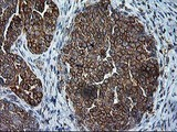 IHC of paraffin-embedded Adenocarcinoma of Human ovary tissue using anti-SSR1 mouse monoclonal antibody.
