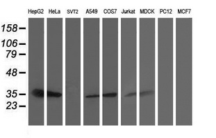 Western blot of extracts (35 ug) from 9 different cell lines by using anti-SSR1 monoclonal antibody.