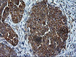 SSR1 Antibody - IHC of paraffin-embedded Adenocarcinoma of Human ovary tissue using anti-SSR1 mouse monoclonal antibody.