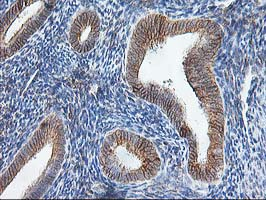 IHC of paraffin-embedded Human endometrium tissue using anti-SSR1 mouse monoclonal antibody.