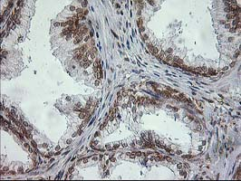 SSR1 Antibody - IHC of paraffin-embedded Human prostate tissue using anti-SSR1 mouse monoclonal antibody.