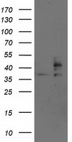HEK293T cells were transfected with the pCMV6-ENTRY control (Left lane) or pCMV6-ENTRY SSR1 (Right lane) cDNA for 48 hrs and lysed. Equivalent amounts of cell lysates (5 ug per lane) were separated by SDS-PAGE and immunoblotted with anti-SSR1.