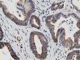 IHC of paraffin-embedded Adenocarcinoma of Human colon tissue using anti-SSR1 mouse monoclonal antibody.