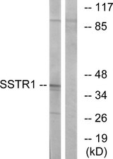 Western blot analysis of lysates from COS7 cells, using SSTR1 Antibody. The lane on the right is blocked with the synthesized peptide.