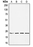 SSX Pan Antibody - Western blot analysis of SSX-pan expression in HEK293 (A); MDAMB453 (B); SW480 (C); A549 (D) whole cell lysates.