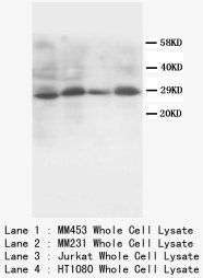 SSX2 Antibody -  This image was taken for the unconjugated form of this product. Other forms have not been tested.