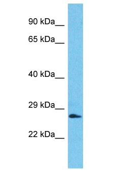 SSX2B Antibody - SSX2B antibody Western Blot of Jurkat. Antibody dilution: 1 ug/ml.  This image was taken for the unconjugated form of this product. Other forms have not been tested.
