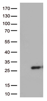 SSX4 Antibody - HEK293T cells were transfected with the pCMV6-ENTRY control. (Left lane) or pCMV6-ENTRY SSX4B. (Right lane) cDNA for 48 hrs and lysed. Equivalent amounts of cell lysates. (5 ug per lane) were separated by SDS-PAGE and immunoblotted with anti-SSX4B. (1:500)