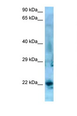 SSX5 antibody Western blot of Jurkat Cell lysate. Antibody concentration 1 ug/ml.  This image was taken for the unconjugated form of this product. Other forms have not been tested.