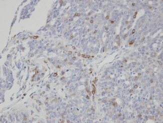 IHC of paraffin-embedded serous OVCA using ST3GAL1 antibody at 1:100 dilution.