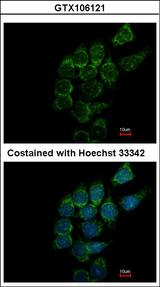 Immunofluorescence of methanol-fixed Hep3B using SIAT4A antibody at 1:500 dilution.