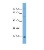 ST8SIA1 Antibody - Western blot of Human OVCAR-3. ST8SIA1 antibody dilution 1.0 ug/ml.  This image was taken for the unconjugated form of this product. Other forms have not been tested.