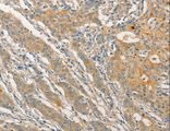 Immunohistochemistry of Human esophagus cancer using STAM Polyclonal Antibody at dilution of 1:40.
