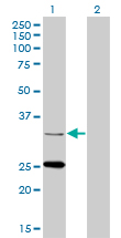 Western Blot analysis of STAR expression in transfected 293T cell line by STAR monoclonal antibody (M01), clone 5F9.Lane 1: STAR transfected lysate(31.9 KDa).Lane 2: Non-transfected lysate.