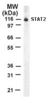 Western blot of STAT2 on 10 ug/lane Jurkat cell lysate using antibody.