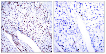 Immunohistochemistry analysis of paraffin-embedded human breast carcinoma tissue, using STAT3 Antibody. The picture on the right is blocked with the synthesized peptide.