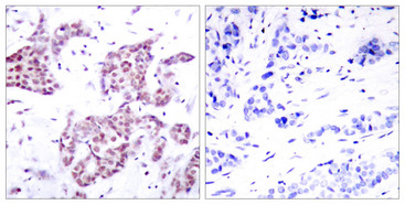 STAT6 Antibody - Immunohistochemistry analysis of paraffin-embedded human breast carcinoma, using STAT6 (Phospho-Tyr641) Antibody. The picture on the right is blocked with the phospho peptide.